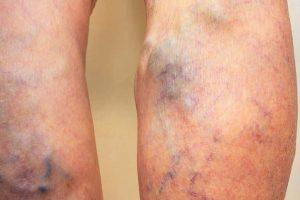Proširene vene na nogama – Zašto se javljaju
