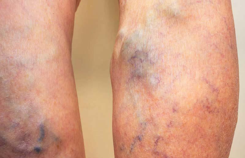 Proširene vene na nogama