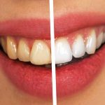 Kako ukloniti zubni kamenac?